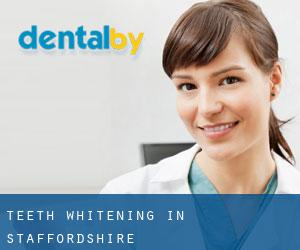 Teeth whitening in Staffordshire