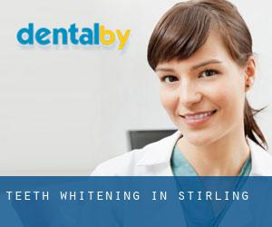 Teeth whitening in Stirling
