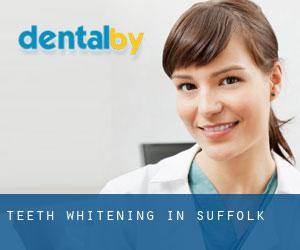 Teeth whitening in Suffolk