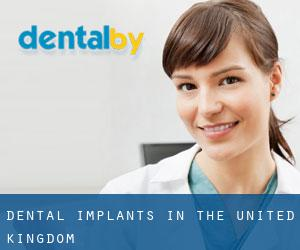 Dental Implants in the United Kingdom