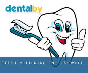 Teeth whitening in Llandwrog