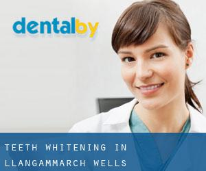 Teeth whitening in Llangammarch Wells