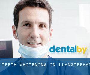 Teeth whitening in Llanstephan