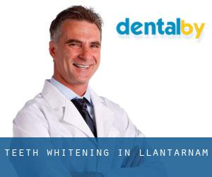 Teeth whitening in Llantarnam